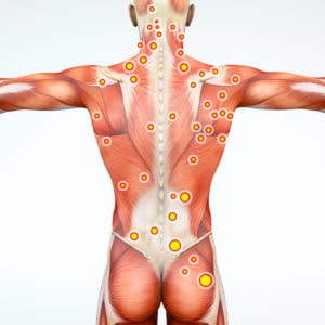 Back view of a man and his trigger points. Anatomy muscles. 3d rendering<br /> Myofascial trigger points, are described as hyperirritable spots in the fascia surrounding skeletal muscle. Palpable nodules in taut bands of muscle fibers